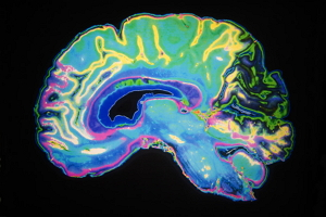 Researchers identify new drug target for schizophrenia