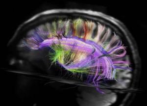 DSI Image of human Brain