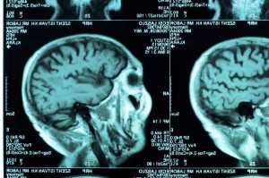 Brains Of Young People With Severe >> Antisocial