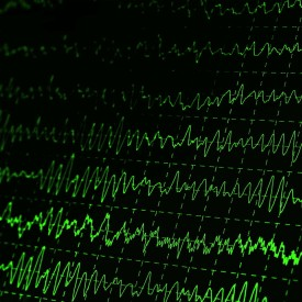 brain waves eeg canstockphoto6225699