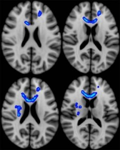 regions of the brain correlated with more severe neurobehavioral symptoms